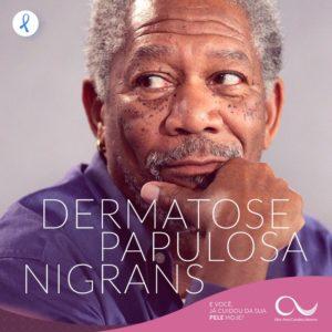 DERMATOSE PAPULOSA NIGRA
