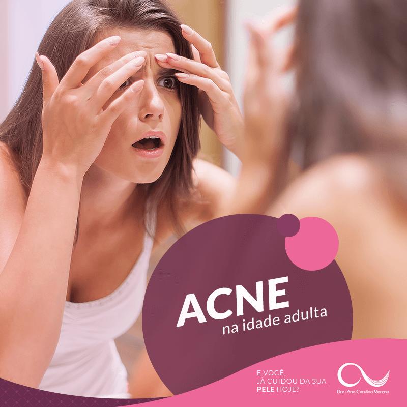 dermatologista especialista em acne