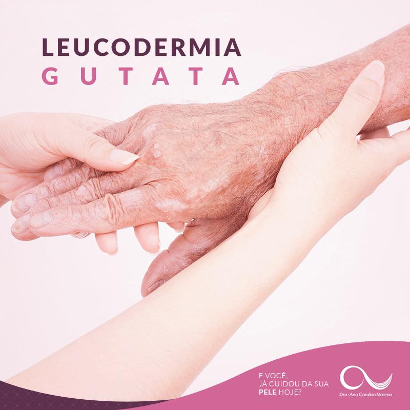 Tratamentos para Manchas - Leucodermia