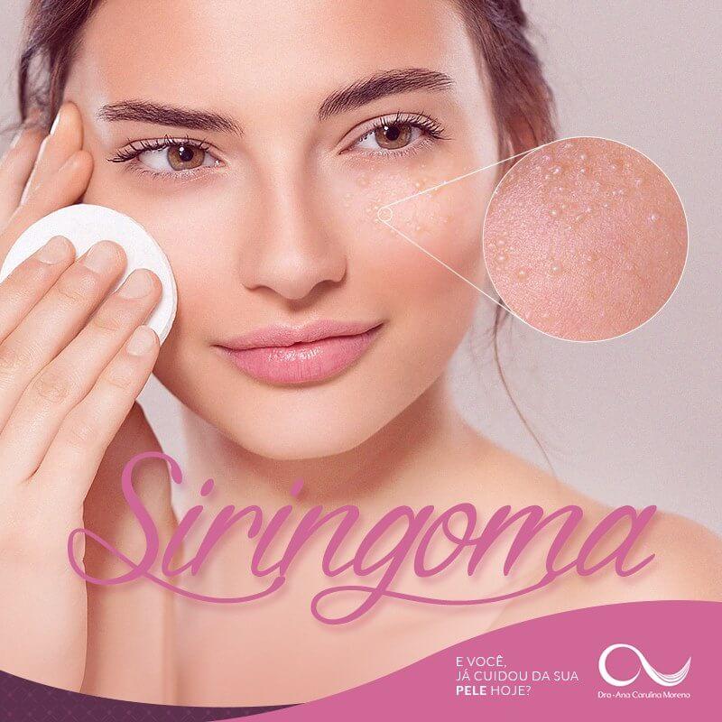 Siringoma - Dermatologista tratamento cirúrgico e estético
