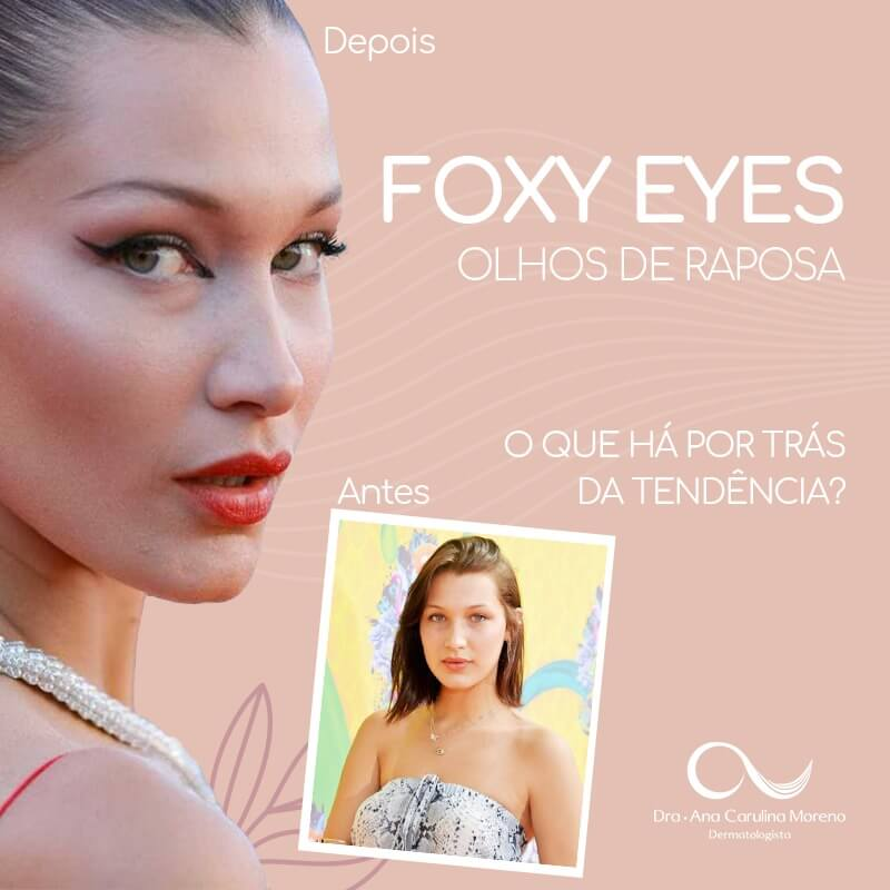 foxy eyes no recreio