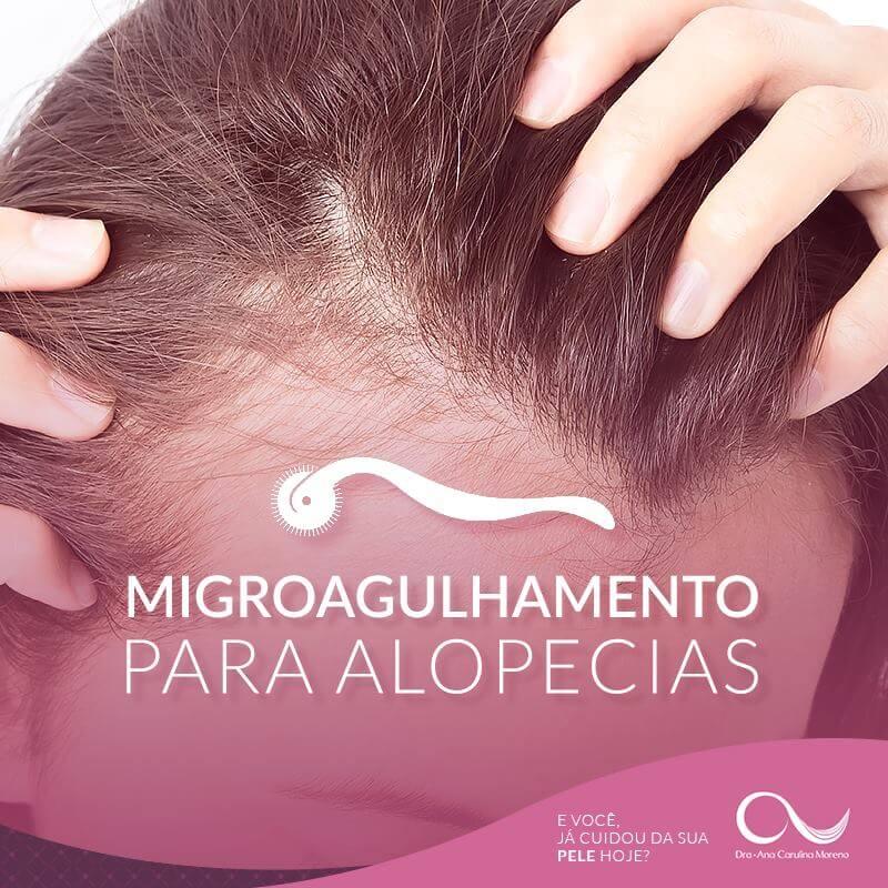 Microagulhamento IPCA